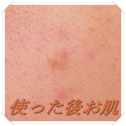 プロアクティブ洗顔ブラシ効き目使用後.jpg